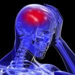 Infarto hemorrágico cerebral y aneurismas rotos